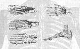 Anatomy Vintage Vector Illustrations [96 Items] Illustration